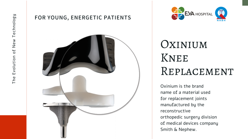 Oxinium Knee Replacement