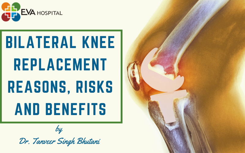 bilateral knee replacement reasons