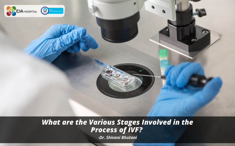 What are the Various Stages Involved in the Process of IVF?