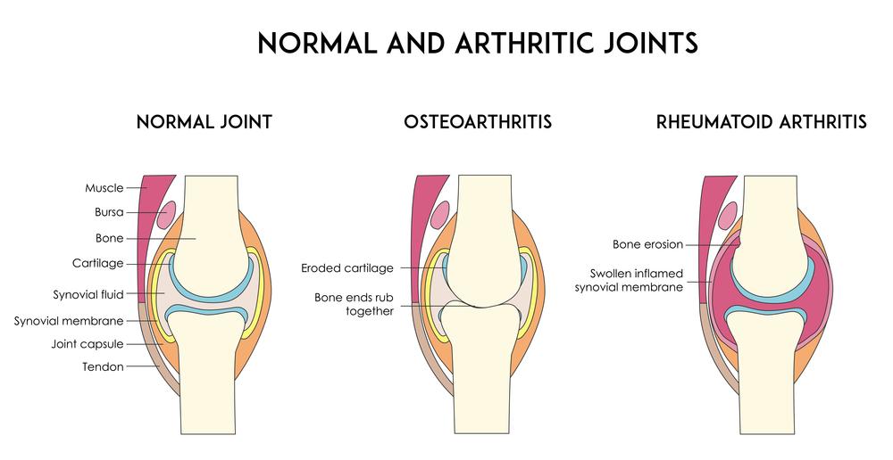 Osteoarthritis & Rheumatoid Arthritis