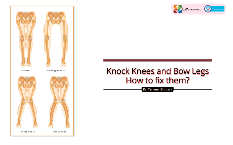 knock knees and bow legs