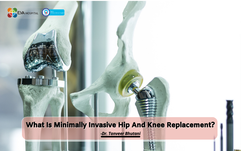 What Is Minimally Invasive Hip And Knee Replacement?